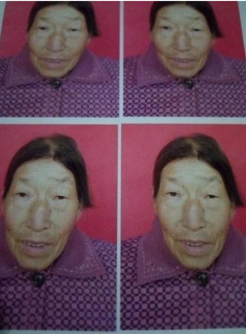 寻找张家口70岁患病老人失联,戴白色头巾、穿大花棉袄、背蛇皮袋。